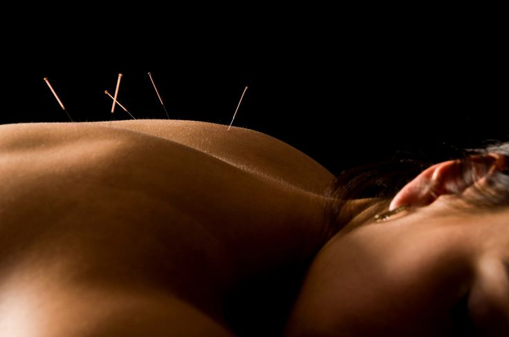 Are you feeling nervous at work place or at home? Then, it is type of stress which one might be cure without any drug use. Book an appointment with us to acupuncture for stress.
