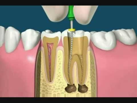 ¿Un diente tratado con endodoncia dura lo mismo que uno sano? | TuOdontologa.com Blog