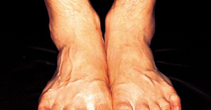 O que é osteocondroma?. Osteocondroma é uma deformidade que começa com uma distinta e persistente protuberância no dorso do pé. Conhecido cientificamente como exostose cuneiforme metatarsal, esse transtorno ocorre por um excesso de acúmulo de osso no peito plantar. Essa região do membro é conhecida como articulação cuneiforme metatarsal. A área elevada de acúmulo ósseo ...