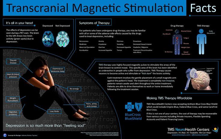 INFOGRAPHIC] Treating Depression With TMS Therapy