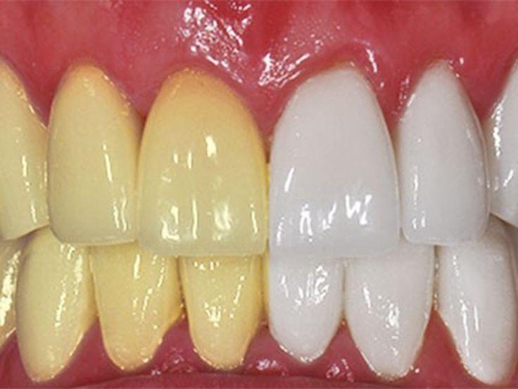 Ben je al heel lang niet naar de tandarts geweest? Rook je of drink je vaak koffie of andere donker gekleurde dranken? Dan is de kans erg groot dat je tanden vergeelt zijn. Gele tanden zijn nou niet bepaald aantrekkelijk en kunnen sommige mensen ook nog eens onzeker maken. Advertentie In deze lijst geven we …