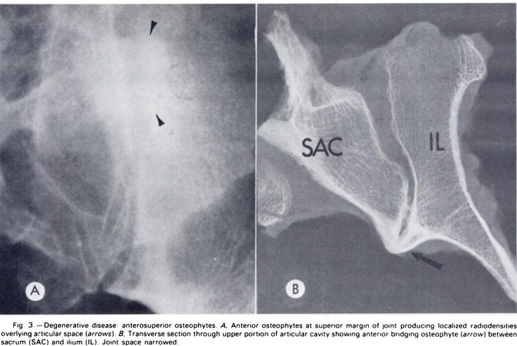 degenerative joint disease of the sacroiliac joint:  narrowed joint space, an anterior bridging osteophyte.  how do you differentiate this from ankylosing spondylitis? (Resnick) - joint space narrowing and bony ankylosis occur in both disorders.  osteophytes are a feature of DJD - mainly on the anterior surface - they are not prominent on AS****