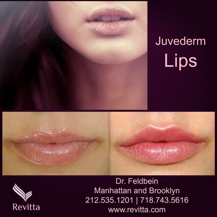 how to make thin lips look full