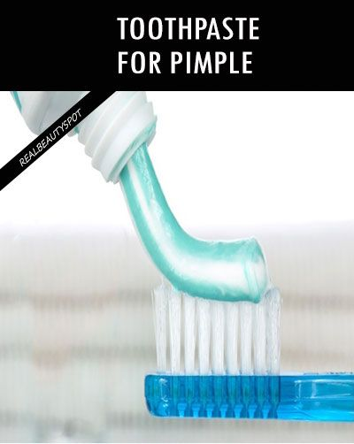 TOOTHPASTE FOR PIMPLE AND SCARS REMOVAL