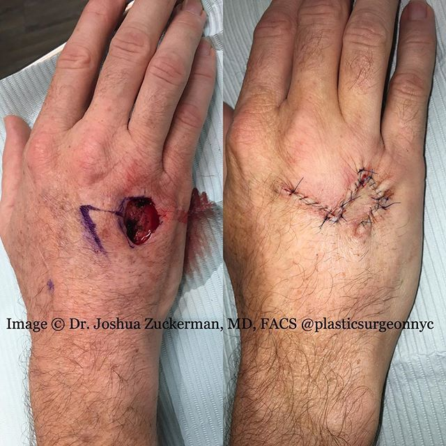 "This is a recent complex reconstruction I performed on the hand. #ninjasurgery The patient underwent Mohs' excision of a squamous cell carcinoma, a common form of skin cancer.  The resulting defect (wound) was too large for direct closure, and required that I reconstruct the area using a rhomboid flap.  This illustrates a fundamental principle of plastic surgery: ""borrowing from Peter to pay Paul"" - tissue is borrowed from an area of excess to fill a deficit somewhere else.  This patient…"