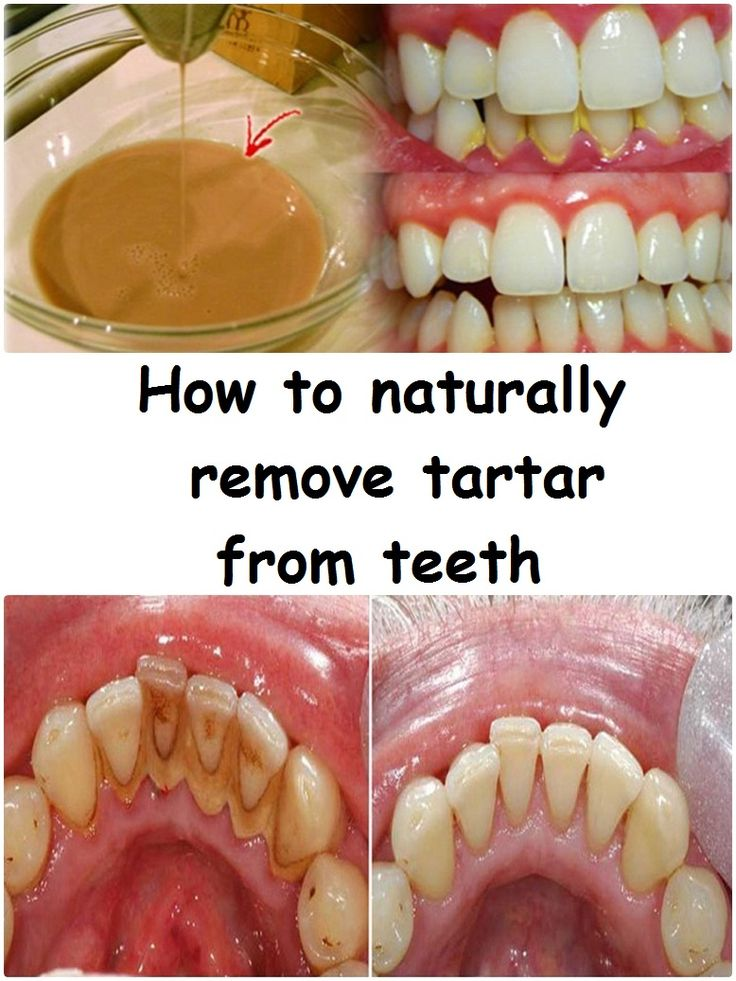 Tartar  is an organo-mineral deposit met in permanent teeth, temporary, fixed and mobile restorations, implants and orthodontic appliances. If plaque is not removed regularly affects the supportive tissue of the tooth, not just the gums, leading to the mobilization of affected teeth, and finally, their loss.