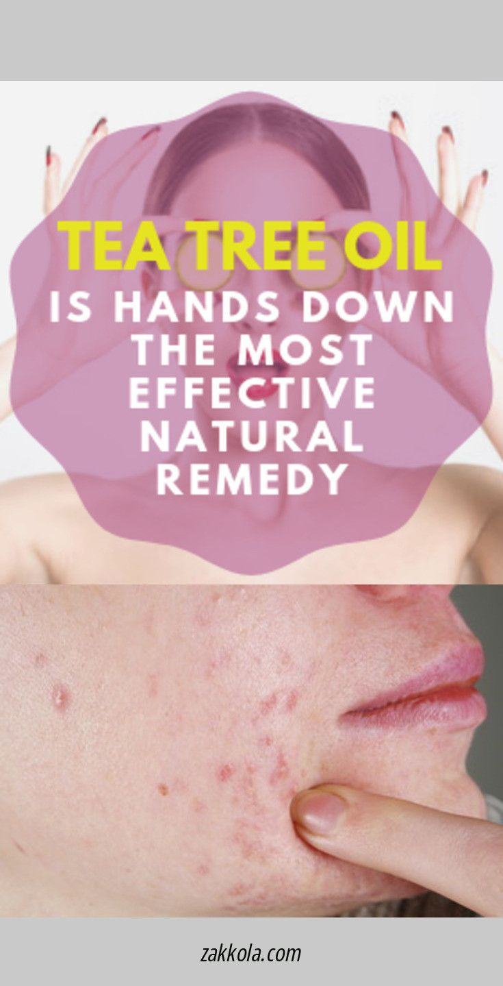 How to get rid of pimples; Hacks