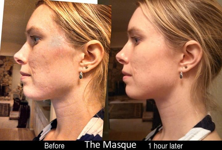 Beautiful! Such great results from Jeunesse.
