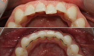 Frustrated with his crooked teeth, James Draper tried the Iman Aligner - a little-known brace which focuses on the front six teeth of both the upper and lower jaw.