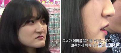 Wonjin Plastic Surgery Clinic Korea : Wajah Bergaris V Yang Feminin Melalui…
