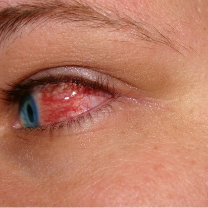 conjunctivitis causes and cures Symptoms of pink eye can affect one or both eyes and include:  viral pink eye  will resolve on its own without treatment, although it can take up to several weeks .