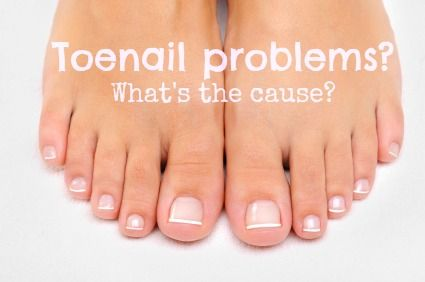 Toenail problems - what causes them and what to do about them? - http://www.mydr.com.au/skin-hair/toenail-problems