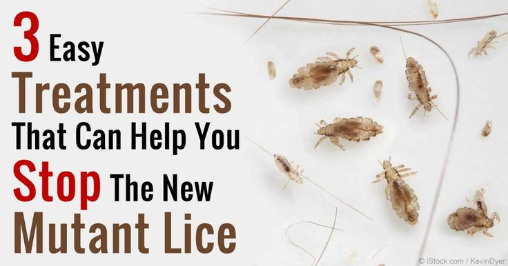 99.6 percent of lice tested in the US and Canada had developed gene mutations, making them resistant to common over-the-counter lice shampoos. http://articles.mercola.com/sites/articles/archive/2015/09/02/mutant-head-lice.aspx