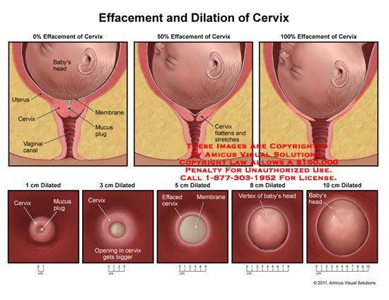 1000+ images about Peds/OB nursing on Pinterest ...  Dilated Cervix Diagram