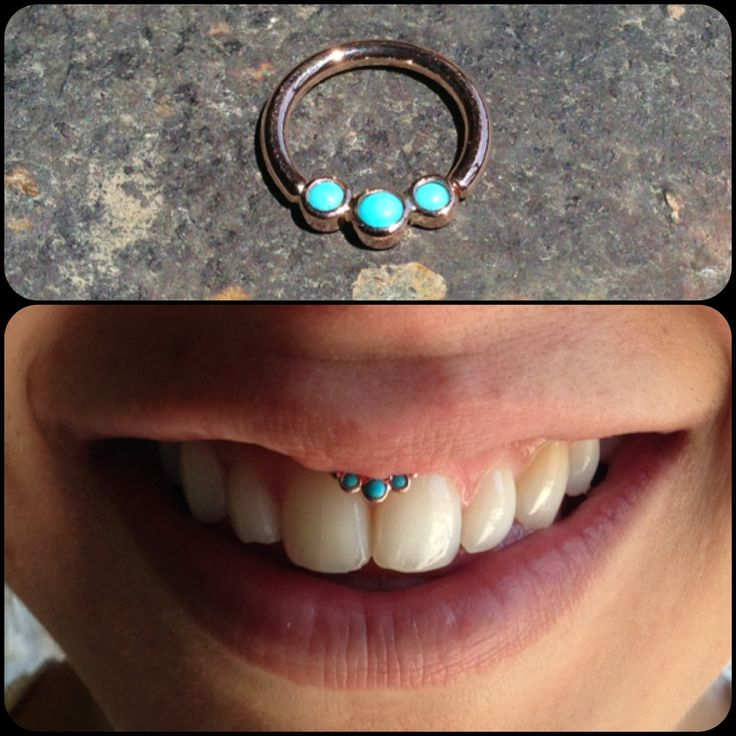 Smiley piercing with jewelry custom designed by Chris Jennell.