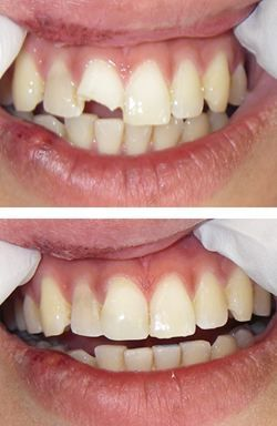 The foremost concern for a chipped or broken tooth is how much traumatic condition it is in. In such a situation, it would need to be addressed as early as possible, or otherwise it would damage the underlying tooth tissue.  #chippedbrokentoothinjalandhar #bestdentalclinicpunjab #teethwhiteningindia  Cont : 9357444802 Visit our site: www.drguptasdentalcareindia.com
