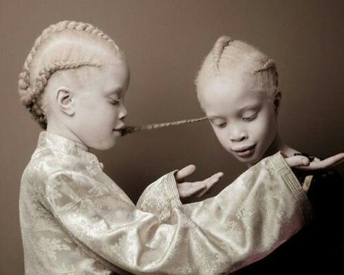 Models Lara and Mara Bawar are 11-year-old twins from São Paulo, Brazil. The girls have albinism, a condition that causes a lack of skin and hair pigment.  Source: boredpanda.com