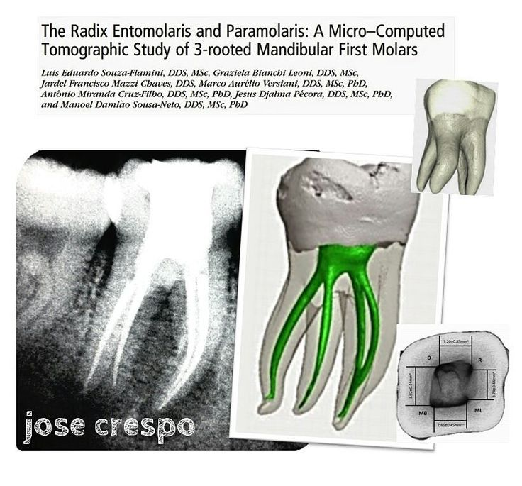 #Endodontics #Endodoncia #Endodontia #RootCanal #Endo #Root #Dentistry #Dental #Dentist #Odontologia #radixentomolaris #EndoLovers Radix Entomolaris raíz y conducto extra en distal de los molares inferiores by drjcrespo Our General Dentistry Page: http://www.myimagedental.com/services/general-dentistry/ Google My Business: https://plus.google.com/ImageDentalStockton/about Our Yelp Page: bit.ly/1KZUPer Our Facebook Page: https://www.facebook.com/MyImageDental Image Dental 3453 Brookside Road…