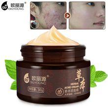 Crema Anti Mancha Acné Espinilla Cicatrices Retiro de La Espinilla del Acné a base de hierbas Crema de Belleza Para Blanquear La Piel Cuidado de La Cara Cremas Acné Treament(China)