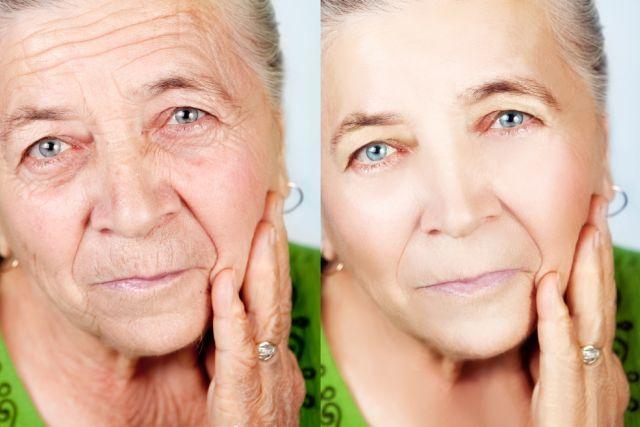 Tudo sobre levantamento facial   – Beleza