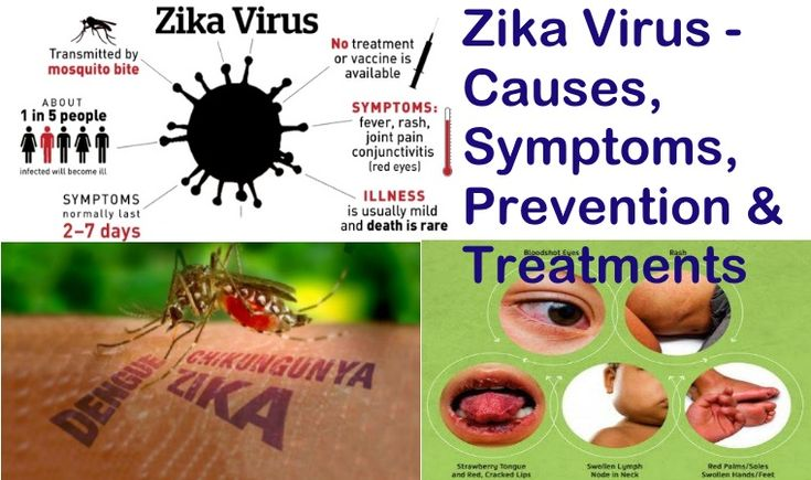 the causes and effects of the zika virus Cdc confirms zika virus causes microcephaly represent the tip of the iceberg of what we could see in damaging effects on the brain and other developmental.