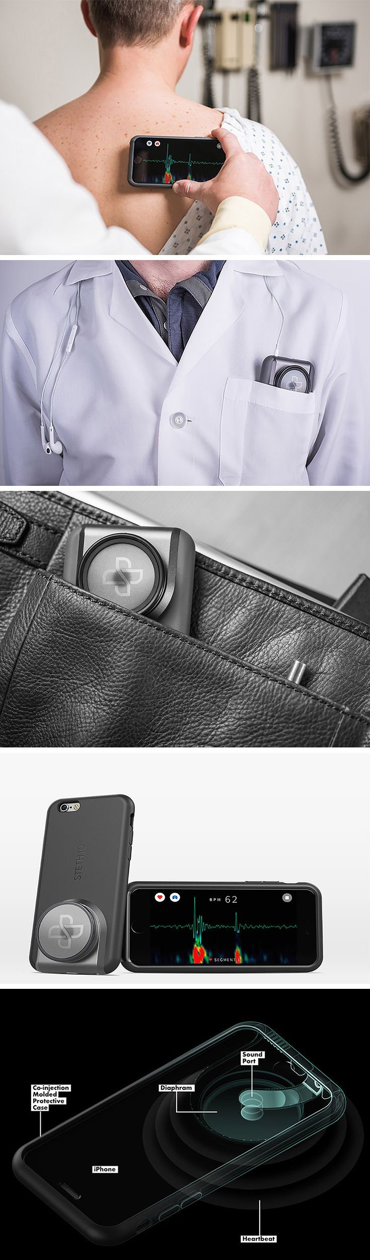 The Steth IO smartphone case modernizes the 200-year-old stethoscope! The case captures audio sounds made by the lungs or a heartbeat and converts them into a visualization on the screen. Rather than just listening to a heart rhythm like they would using a traditional stethoscope, medical professionals can hear the heartbeat, visualize it, record the data, and review it anytime. Something impossible with a standard stethoscope!