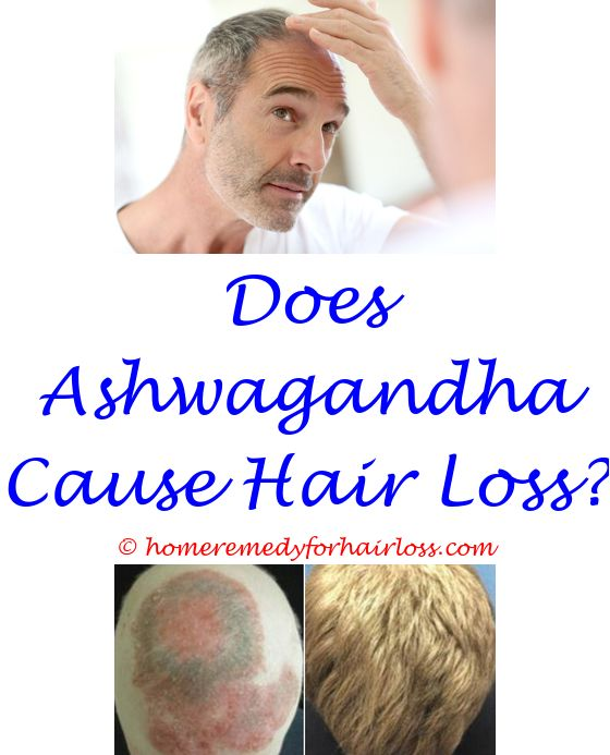 can varicose veins cause hair loss - is dht the cause of hair loss.which hormone is responsible for hair loss calcium channel blockers and hair loss ylang ylang hair loss 3192380090