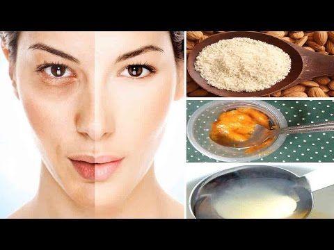 Melasma Cure Home Remedies #HyperpigmentationTreatmentatHome #melasmacure #hyperpigmentation #melasma #melasmatreatment