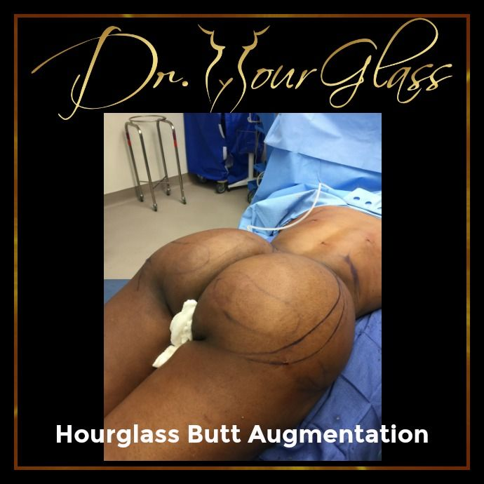 They say that wearing girdle can push the excess fat from your abdomen down to your hips and this dual effect can make your butt look bigger. But, why use girdle if you have a natural option that can transform your buttocks in a better shape just like Hourglass Butt Augmentation.