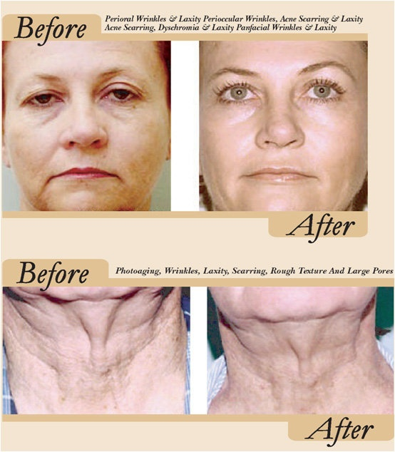 17 Best Images About Refirme Before And After Pictures On