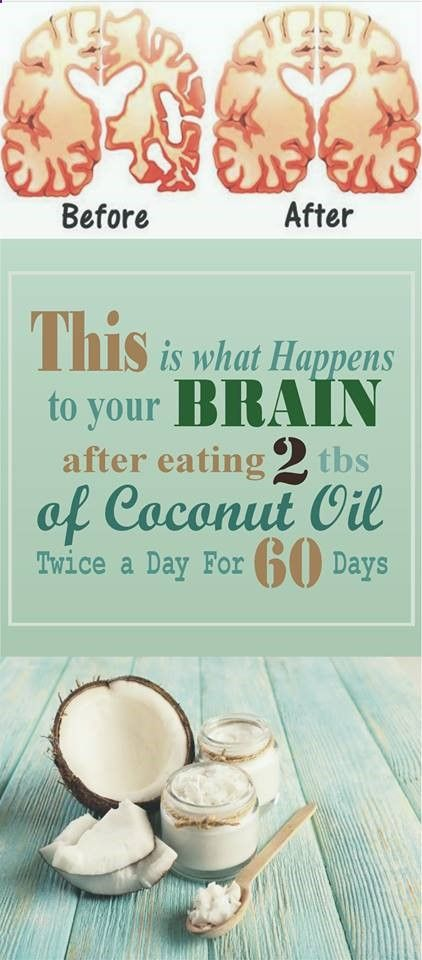 This Is What Happens To Your Brain After Eating 2 Tbs Of Coconut Oil Twice A Day For 60 Days - Read & Repin Follow Us