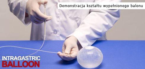 Prezentacja rozmiaru wypełnionego balonu żołądkowego. Normalnie takie wypełnienie wykonuje się wewnątrz żołądka.