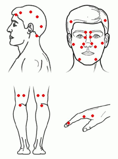 Sinus accupressure release