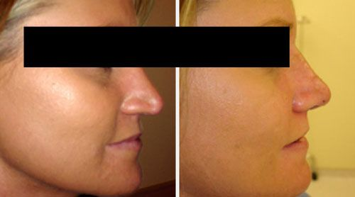 What is a Nose Job? An Introduction to Rhinoplasty...