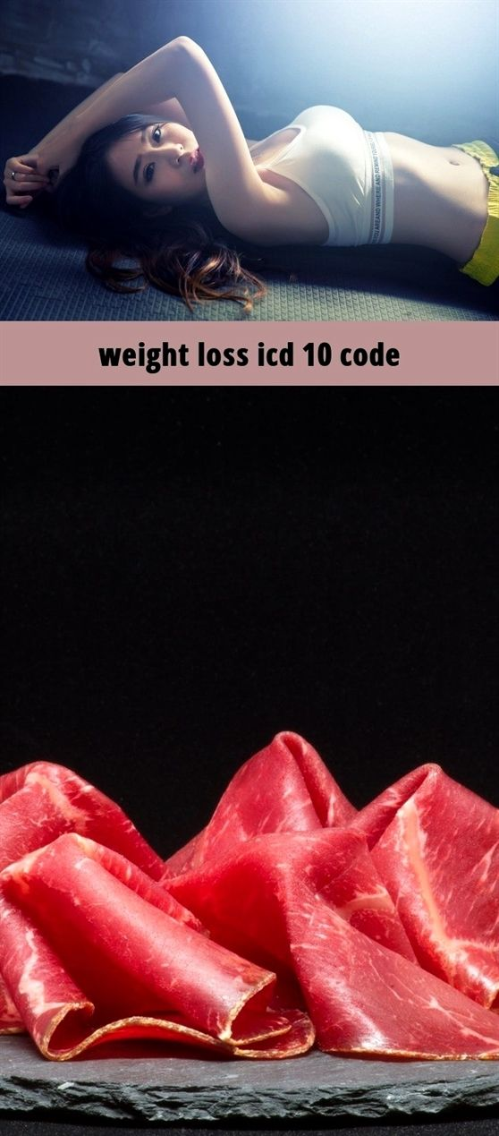 weight loss icd 10 code_331_20190209130840_55 best exercise for