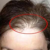 Вот это да! Натуральный способ укрепить волосы и навсегда избавиться от седины! | Интересные статьи от друзей, здоровье, красота, путешествия , советы