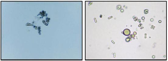 acid uric in urina