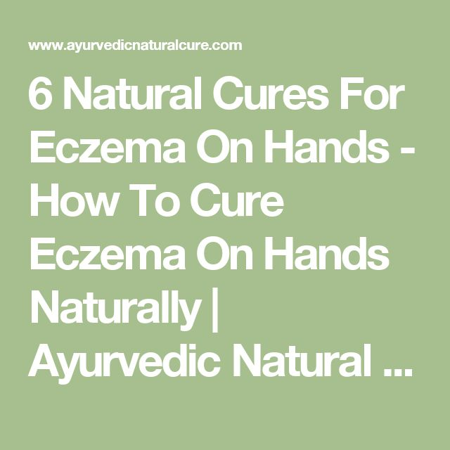 6 Natural Cures For Eczema On Hands - How To Cure Eczema On Hands Naturally | Ayurvedic Natural Cure Supplements