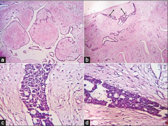(a) Classical leaflike areas in a benign phyllodes tumor (H and E, ×40), (b) Benign phyllodes tumor and ductal carcinoma in situ (DCIS) (Ενδοσωληνωδες πρότυπο)