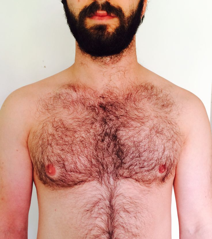 Hair Removal for Men | Vancouver Hair Removal for Men