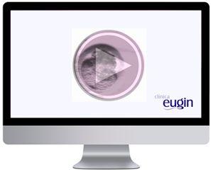 Time-lapse embryo Imaging Aquesta tècnica innovadora dóna als futurs pares la possibilitat d'observar les primeres hores de vida de l'embrió