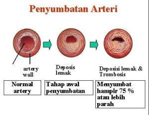Selamat Datang di Obat Kolesterol Tinggi Helbal Jelly Gamat Gold G   Obat Kolestero tinggi Kolesterol merupakan zat seperti lilin yang terdapat di dalam tubuh kita. Pada dasarnya kolesterol di butuhkan tubuh sebagai cadangan makanan di saat asupan makanan