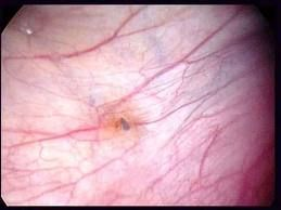 Polysistic Ovary