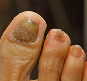14 Home Remedies for Toenail Fungal Infection- I know the picture is a little gross, but girls this does happen sometimes in a bad salon pedicure or infection from whatever, so here are some natural remedies for the ones that posses this. You'll be wearing sandals again in no time :)