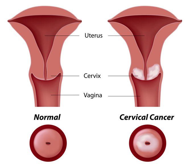 Cervical Cancer Cause