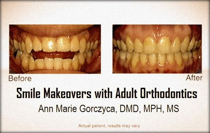 Smile Makeovers with Adult Orthodontics - Ann Marie Gorczyca, DMD, MPH, MS   Odonto-TV