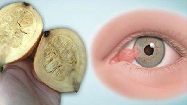 En este artículo te damos a conocer esta receta la cual te va ayudar a aumentar tu vista hasta un 85%, se trata de un remedio caser...