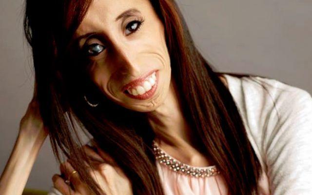 Lizzie Velasquez, la ragazza più magra del mondo. E la più bella