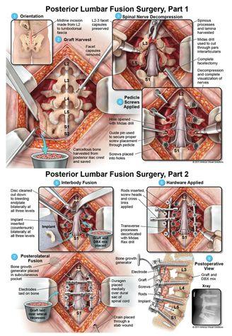 Posterior Lumbar Fusion Surgery by Sarah Faris
