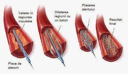 Medstory: Angioplastia cu stent pe arterele coronare
